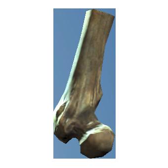 File:Broken femur.png