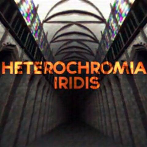 File:Heterochromia Iridis.jpg