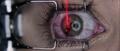 Olivia's eye gets lasered.png
