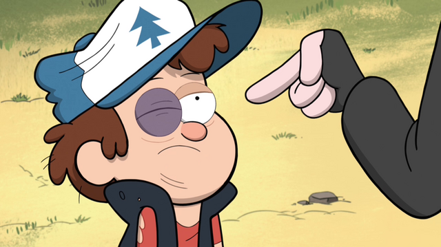 File:S1e10 robbie point dipper face.png