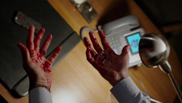File:601-Renard's bloody hands.png