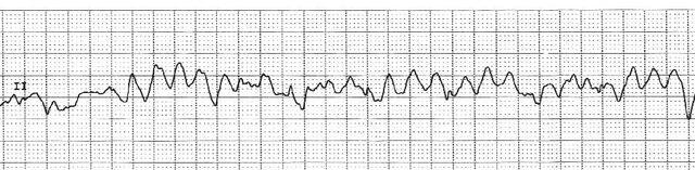 File:EKG VF.jpg