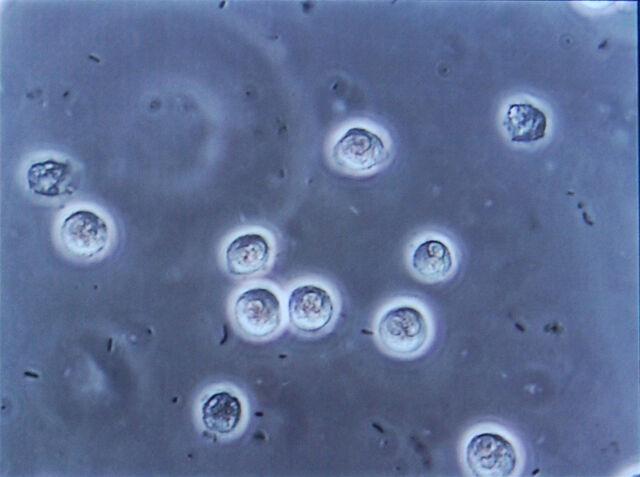 File:Bacteriuria pyuria 4.jpg