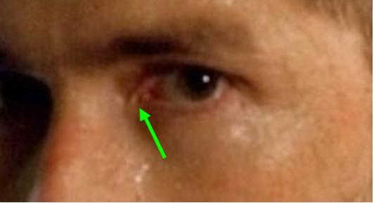 File:Jack eye comparison.jpg
