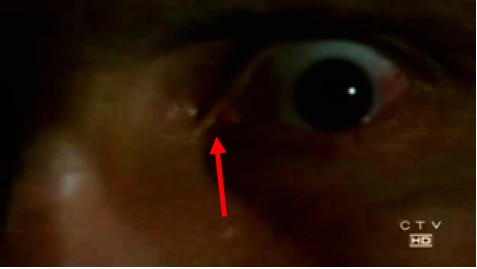 File:The eye.jpg