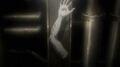 Zeke Severed Arm IMRT.jpg
