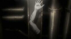 Zeke Severed Arm IMRT