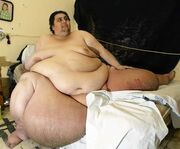 Morbidly-obese