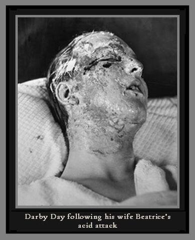 File:Acid-day-photo-burns.jpg