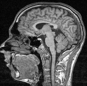 FMRI-scan sectie 85