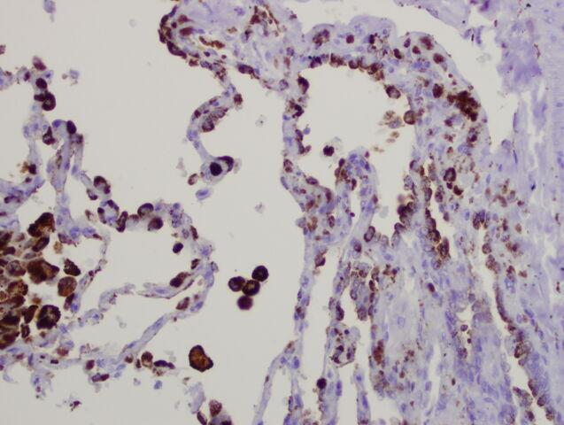 File:Napsin lung.jpg