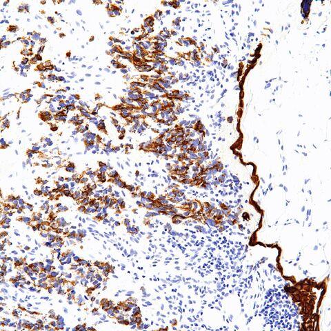 File:Keratin.desmoplastic small round cell tumor.2.jpg