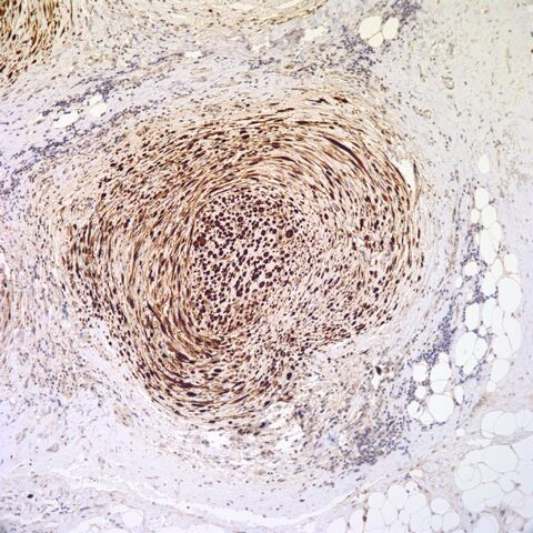 File:S100.desmoplastic neurotropic melanoma.10.jpg