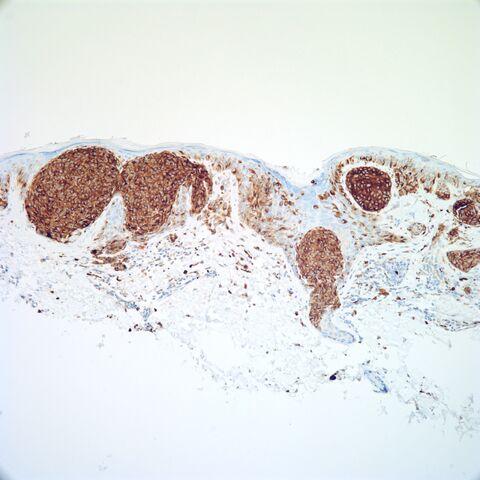 File:NKI-C3.melanoma.m.1.jpg