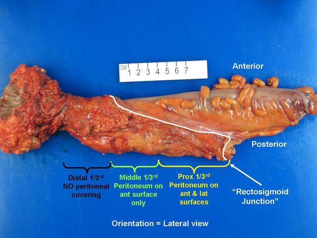 File:Rectum lateral view.jpg
