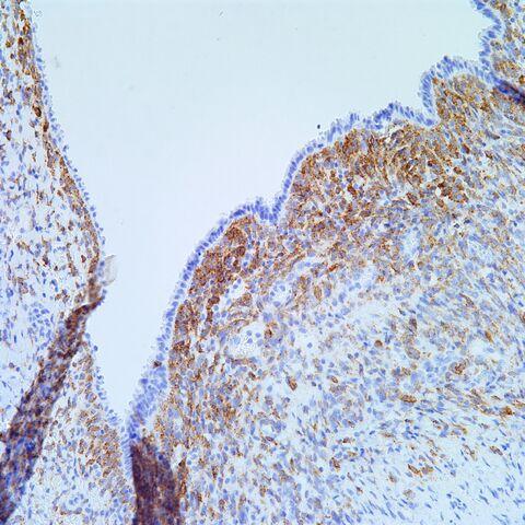 File:Hmb45.AML with cyst.1.jpg