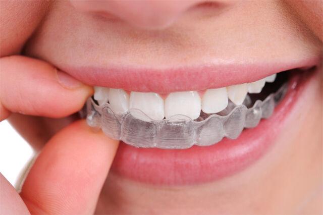 File:Dental Retainer.jpg