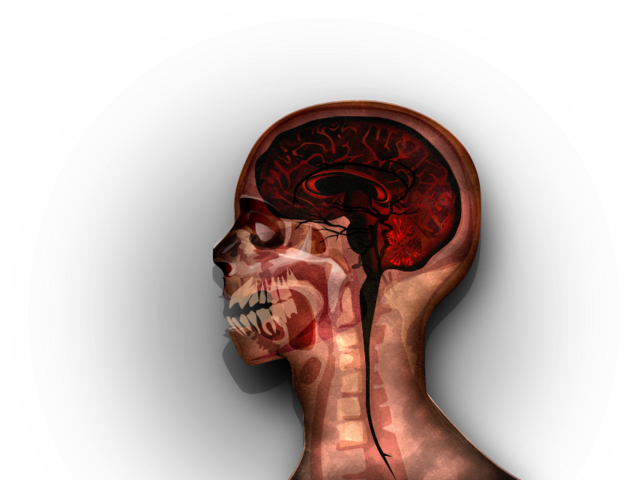 File:MRI stage05@2x.png