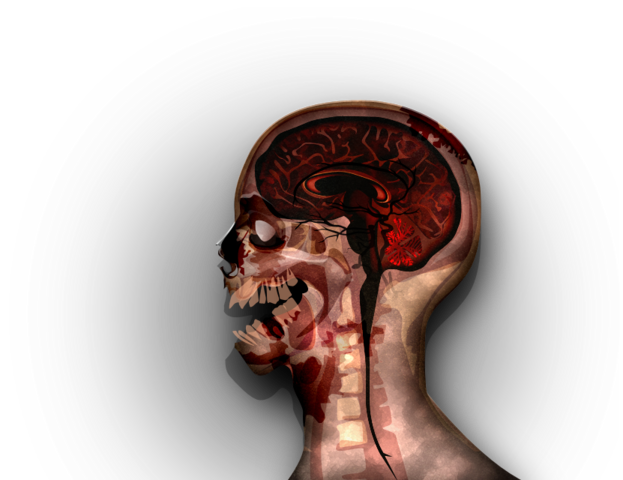 File:MRI stage06@2x.png