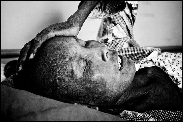 File:Cambodia AIDS Victim.jpg
