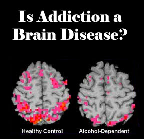 Difference between gambling addiction and drug addiction