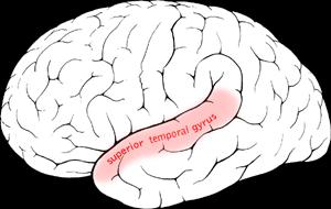 Superior temporal gyrus