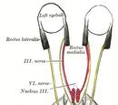 Sixth nerve palsy