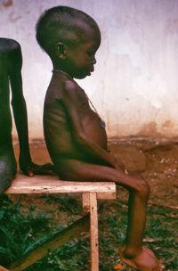 Starved girl
