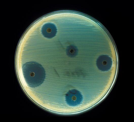 File:Staphylococcus aureus (AB Test).jpg