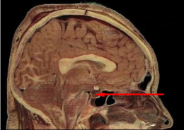 File:Pituitary gland.png