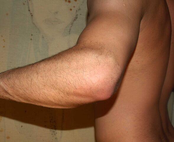 File:Elbow by David Shankbone.jpg