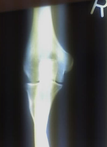 File:RightElbowXray.jpg
