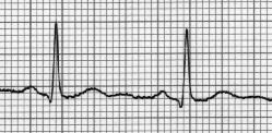 File:EKG2.png
