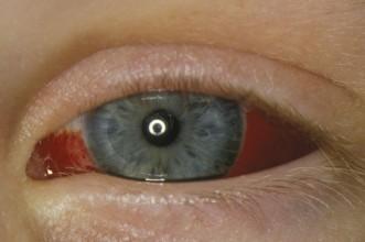 File:Adult-subconjunctival-haemorrhage-eye.jpg