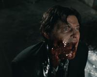 Hoffman's Jaw Breaks