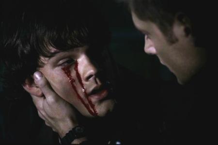 Datei:Blut im Gesicht.jpg