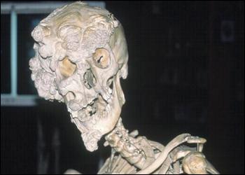 File:Skull h zoom.jpg