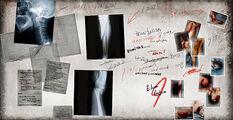 X-Ray Board