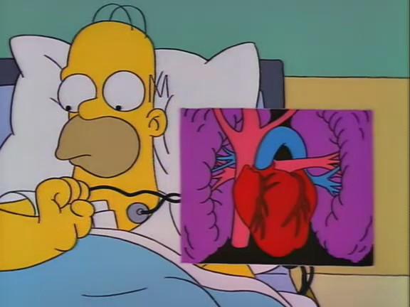 File:Homer's Triple Bypass 127.JPG