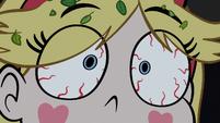 S1E6 Star bloodshot eyes close-up