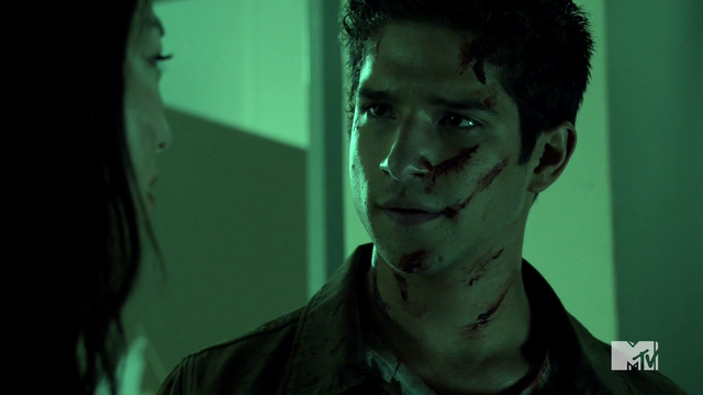 Datei:Teen Wolf Season 4 Episode 10 Monstrous Scott streaked with blood.png