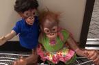 Babu and Molly after Surgery