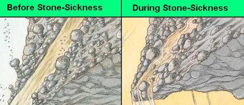 Stonesickness