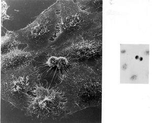 739px-Hela Cells Image 3709-PH