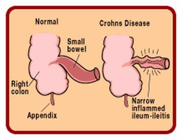File:Symptoms-of-Crohn's-disease.jpg