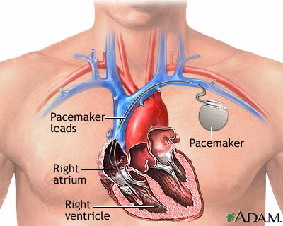 File:Pacemaker.jpg