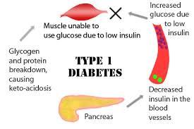 File:Diabetes.jpg