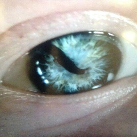 File:Sigurd-snake-in-th-eye.jpg