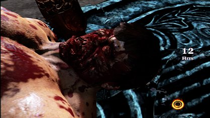 File:Hercules' Death.jpg