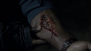 Ryan Nichols's Arm